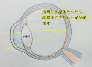 透明な水晶体