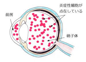 ぶどう膜炎