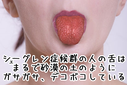 シェーグレン症候群の舌