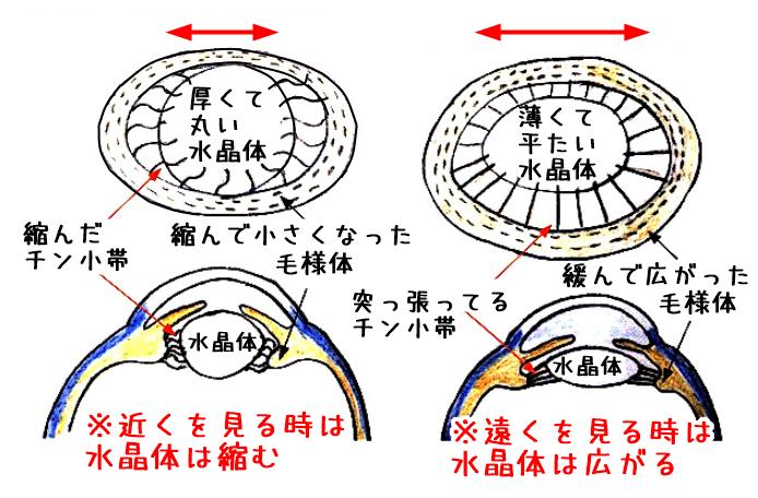 水晶体老眼